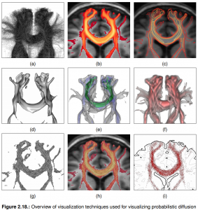 Figure 2.18 from Goldau's thesis: Overview of techniques for visualizing probabilistic diffusion tractography.
