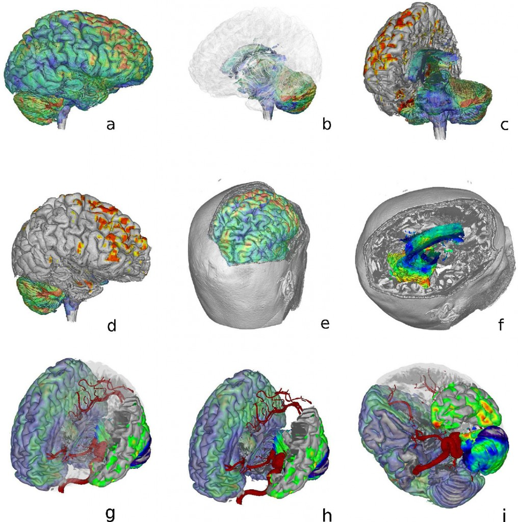 Multi-modal brain visualization from Abellan 2013, discussed in the bonus lecture on Multi-Modal Visualization.